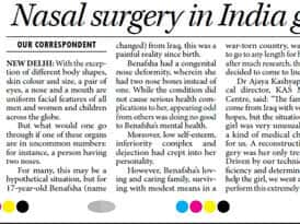 nasal surgery in india